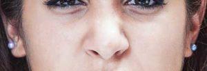arricciamento del naso, espressioni facciali